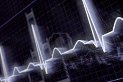 Cientistas conseguem regenerar corações depois de enfarte
